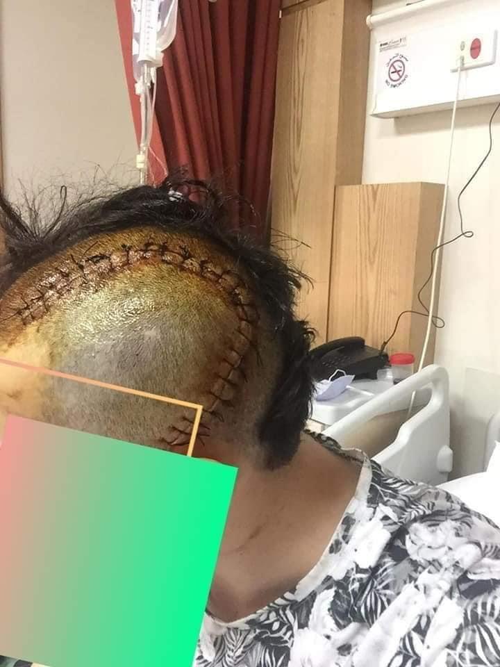 إعتداء عنيف على شاب من فارضي الإتاوات يتسبب بإصابة نافذة في الجمجمة وتحطيم مركبته