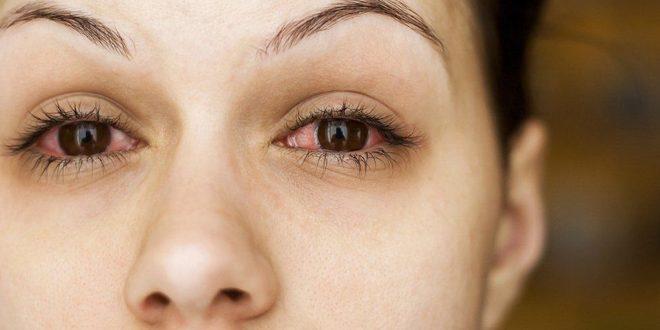دراسة بريطانية أعراض جديدة لفيروس كورونا ترتبط بالعينين