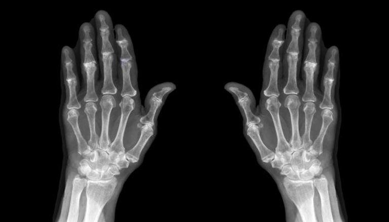 هشاشة العظام تضاعف خطر باركنسون لدى كبار السن